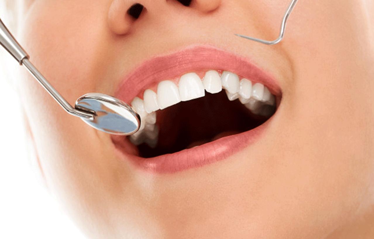 Carillas dentales en Rubí