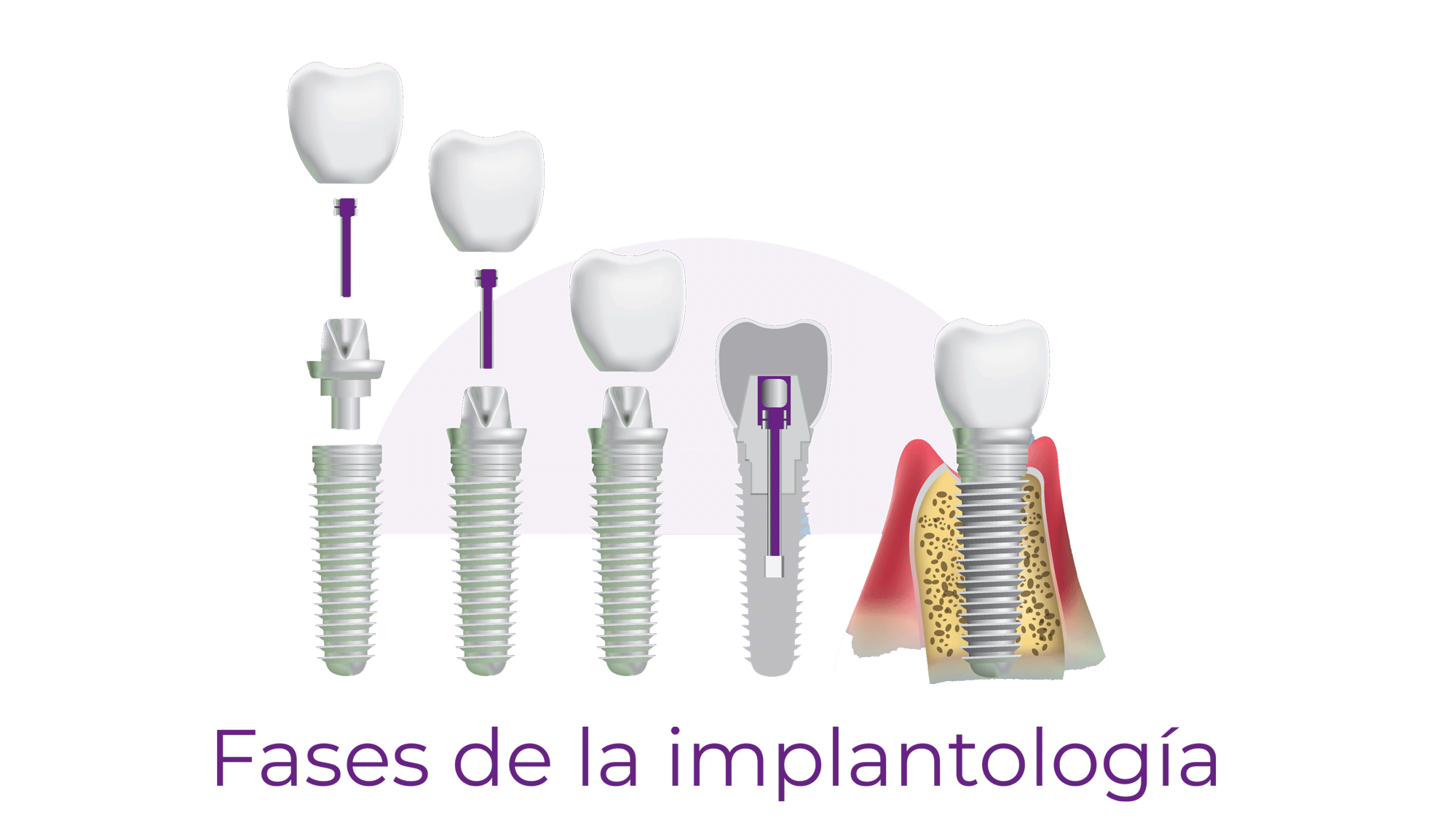 Fases implantología dental Rubí